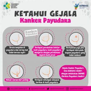 Gejala Kanker Payudara